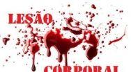 Homem é esfaqueado, em Quirinópolis, mas não soube informar o motivo à polícia